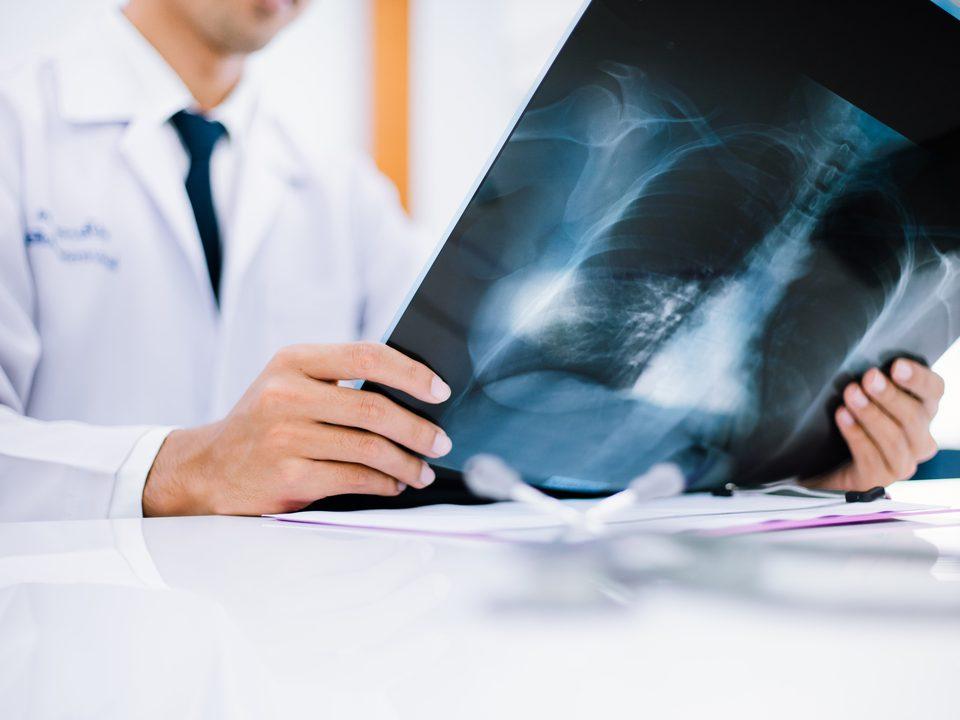 Médico observa exames contrastados