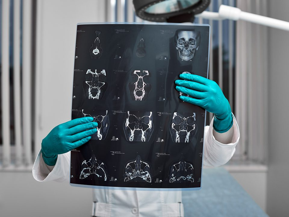 Tipos de contraste de exame: médica segura radiografia.