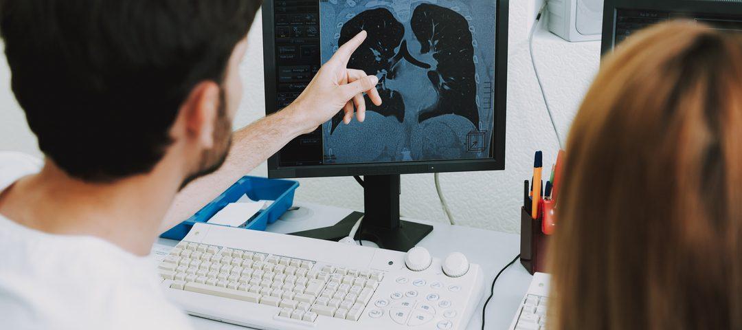Angiotomografia: médico analisa pulmão de paciente;